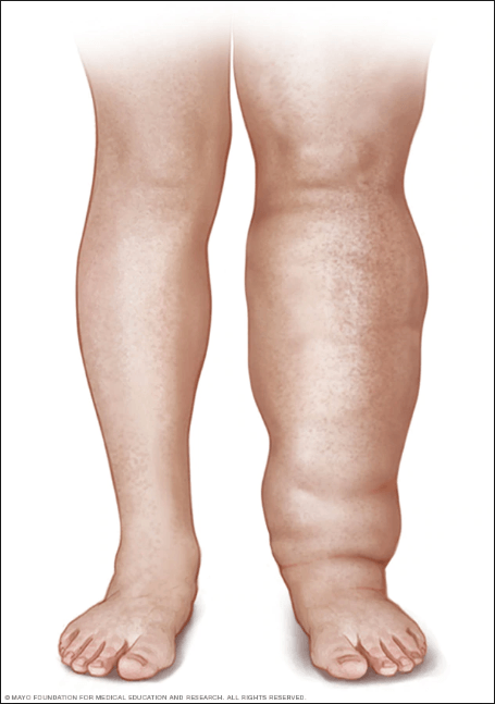 artistic drawing of what lymphedema looks like