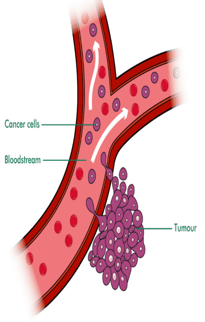 diagram of cancer cells entering the blood stream